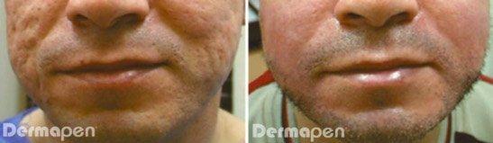 Dermapen avant et après